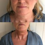 1-Plasma-neck-lift-2-150x150